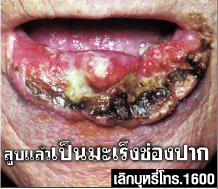 ghw th oral