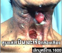 ghw th throat