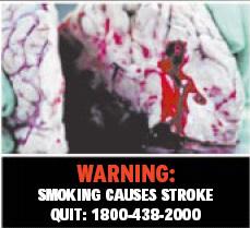 Singapore 2003 Health Effects stroke - diseased organs, brain, stroke, gross