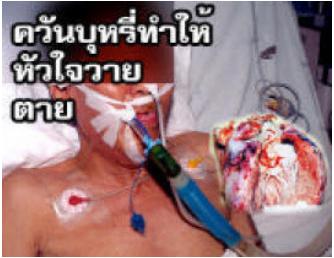 th ghw 1 2007 9